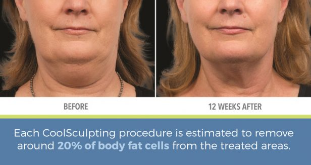 Each CoolSculpting procedure is estimated to remove 20%of body fat cells from the treated areas