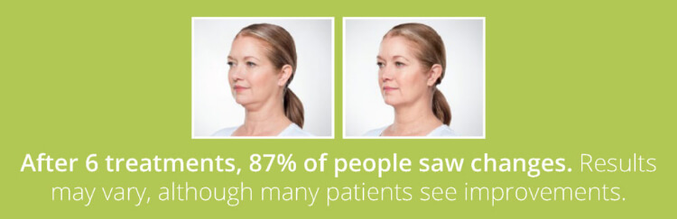 After 6 treatments, 87% of people saw changes.