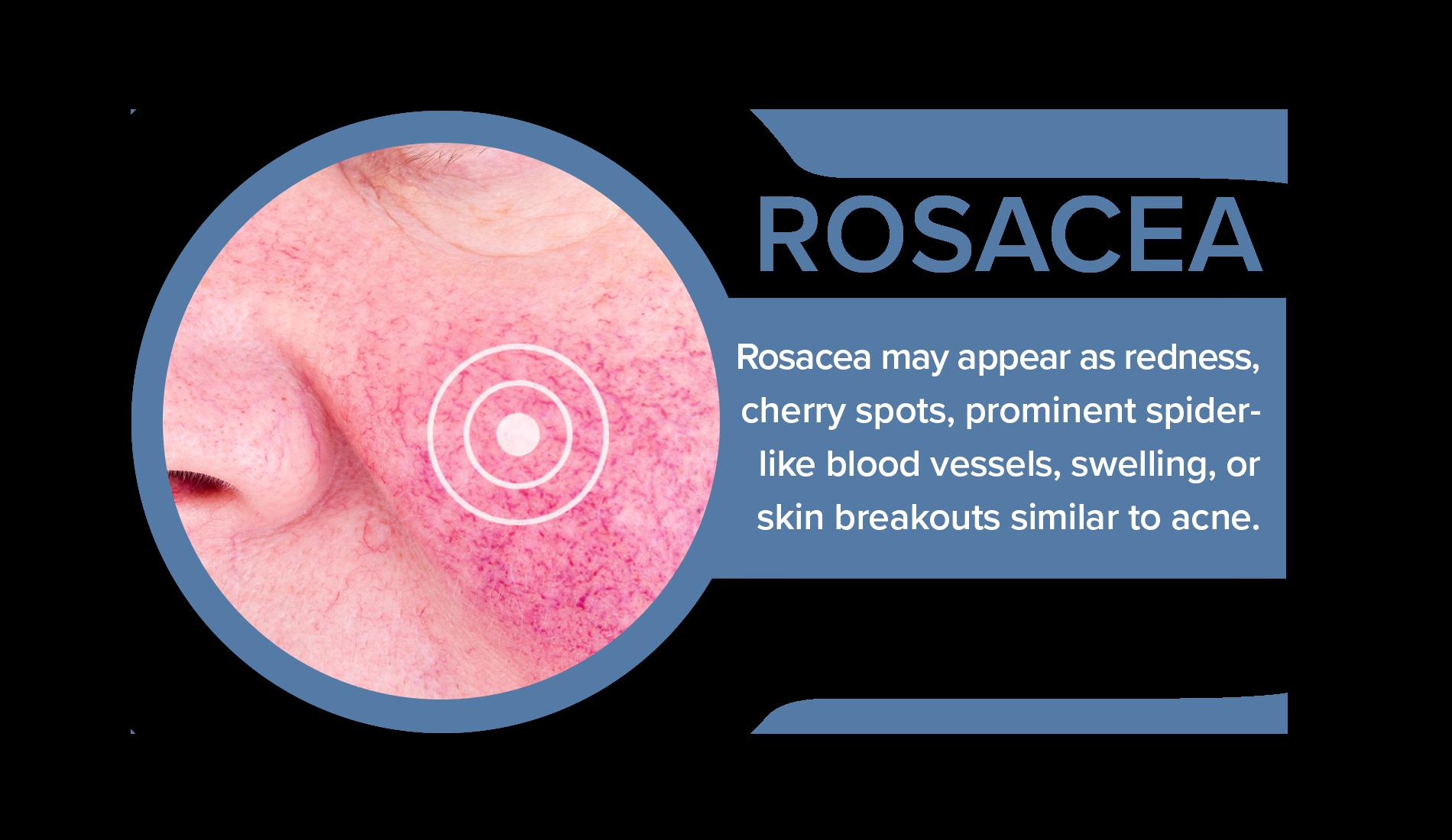 Close-up of symptoms of rosacea